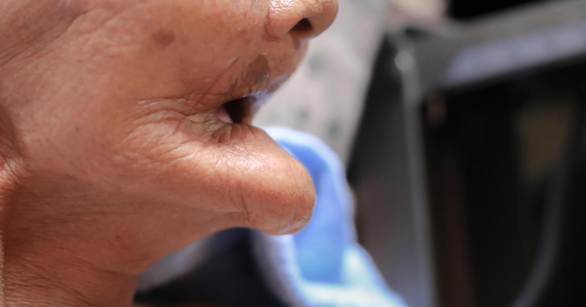 jaw bone atrophy in a denture wearing senior female
